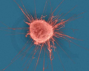 cancer cell, breast